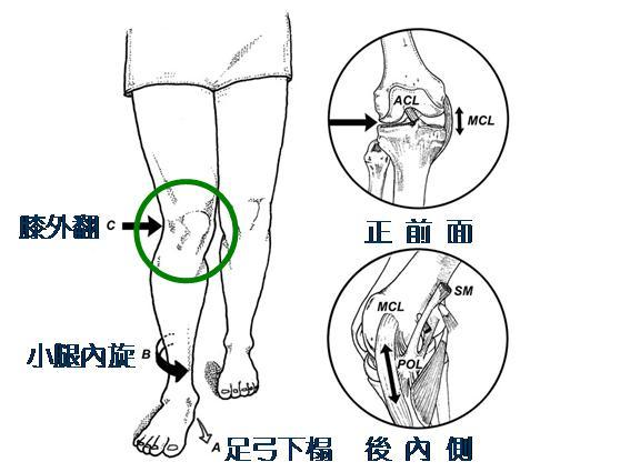 专职医疗复康中心:足弓下榻会导致小腿内旋,膝关节外翻